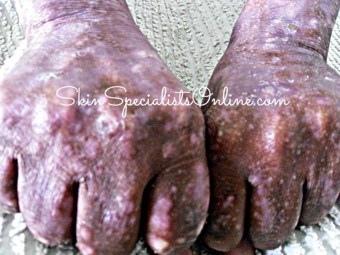 white spots on skin