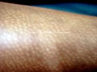 white spots on skin disease